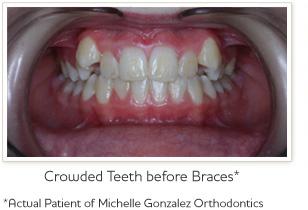 braces-before1