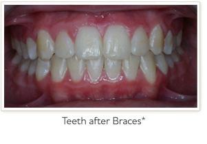 braces-before2